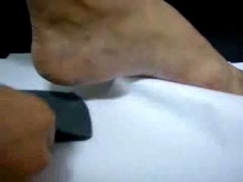 CHILD (Flat feet) KIDS Orthtic insoles, 矯正鞋墊, 足弓墊, 扁平足鞋墊 Video