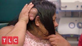 A Life Destroying Bump Dr Pimple Popper
