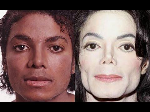 Почему Майкл Джексон мутировал в белый цвет?