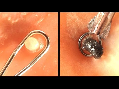 Popping Whiteheads and Blackheads Close Up