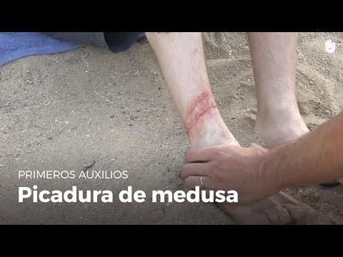 Primeros auxilios : Picadura de medusa   Primeros auxilios