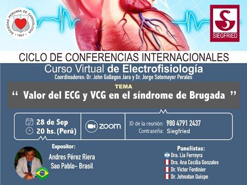 Valor del ECG y VCG en el Síndrome de Brugada