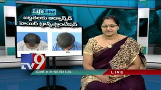 Baldness : Advanced Hair Transplantation - Lifeline - TV9