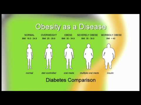 Obesity is a Disease, Part 2 of WhyDiet Surgical Weight Loss Seminar