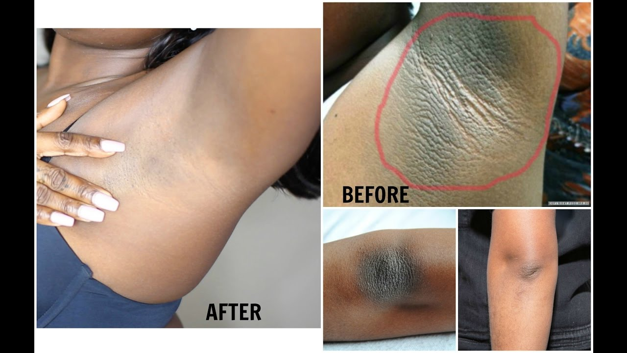 How to get rid of dark spots scars on legs How to get rid of dark spots scars on legs new foto