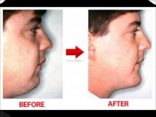 how to get rid of double chin : get rid of double chin with double chin exercises
