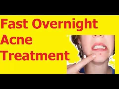 Best Overnight Acne treatment Best ! ►►► Homemade acne treatment ◄◄◄