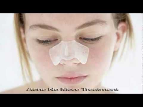 White Head Treatment To Healing Acne From The Inside Out