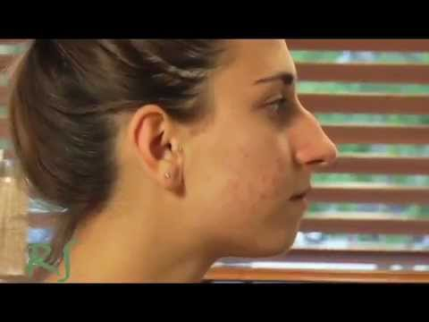 17 Yr Old Girl Gets Nose Job. Must See the After!