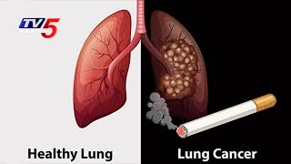 Lung Cancer - Causes, Symptoms,Treatments | Omega Hospital | Health File | Telugu News | TV5 News