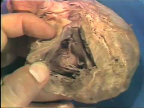 Dissection: The Heart