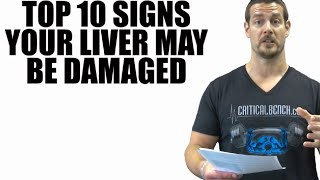 Top 10 Signs Your Liver May Be Damaged