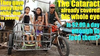 Travel to Manila Philippines and Meet this Poor Family. His Cataract Covered His Whole Eye