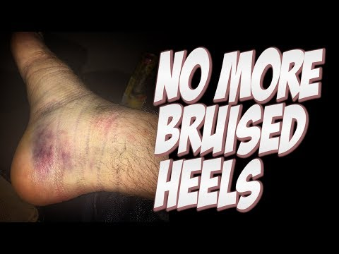 NO MORE BRUISED HEELS AND HOW TO HEAL THEM !!! - NKA VIDS -