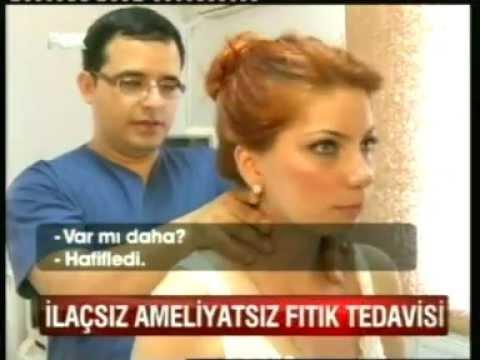 Ameliyats�z F�t�k Tedavisi Manuel Terapi ile M�mk�nd�r