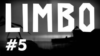 Limbo: Mr Marvin & His Leg! (EP05)