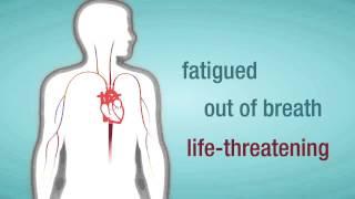 Download Valve Regurgitation: When a Heart Valve Leaks 3Gp Mp4