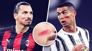 Why did Zlatan and Cristiano Ronaldo have red marks on their faces this weekend? | Oh My Goal