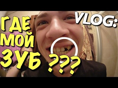 VLOG: ГДЕ МОЙ ЗУБ ??? / Андрей Мартыненко