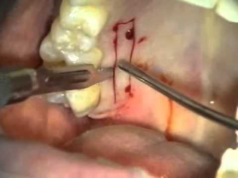 Periodontal Microsurgery: Gingival Grafting