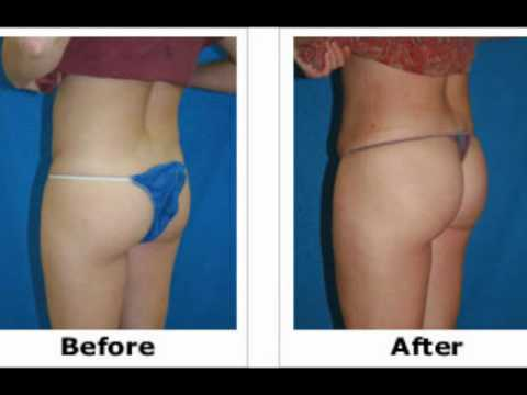 Abdominoplasty - Liposuction Cosmetic Surgery