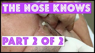 "The Nose Knows: Part 2 ""Mr Wilson"