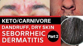Keto/Carnivore Dandruff, Dry Skin & Seborrheic Dermatitis Part 2: Biotin Deficiency