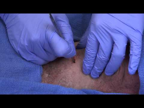 Surgical Cricothyroidotomy - Dennis Kim, MD