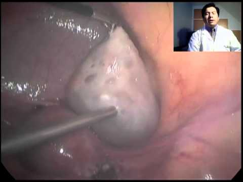 Laparoscopic Surgery For Ovarian Cyst. Dr. Raul Pilco, Quiste De Ovario
