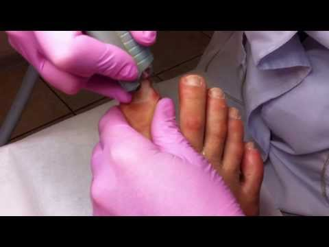 How to do a pedicure with a Professional Drill Machine by using different Drill Bits