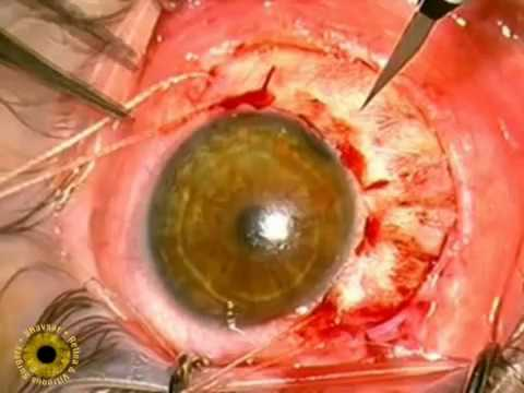 Intraocular tumor Surgery, Melanoma Music Videos
