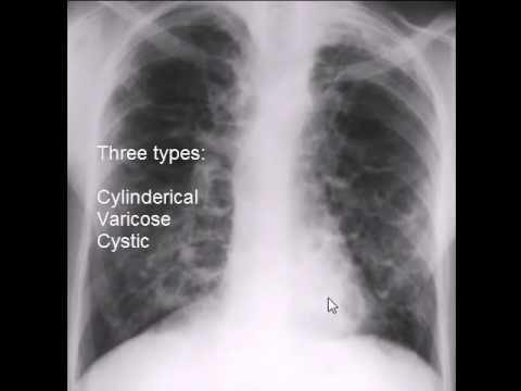 chest x-ray, bronchiectasis