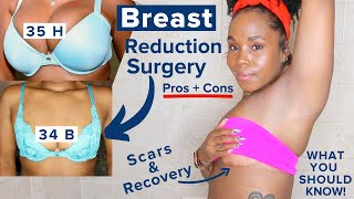 My Breast Reduction, Breast Lift & Recovery Story | Scars + Dark Marks | Plastic Surgery Pros & Cons