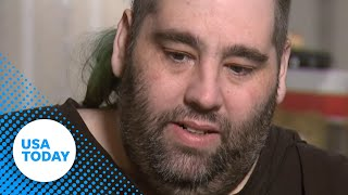 Man gets 100 pound growth removed from scrotum