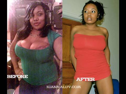 my 40lb Weight Loss Before