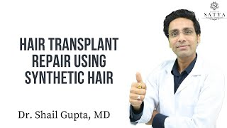 Hair Transplant Repair with Synthetic Hair Implant