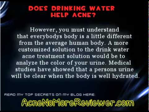Does Drinking Water Help Acne - Get The Truth Straight Here