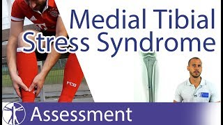 Medial Tibial Stress Syndrome / MTSS / Shin Splints