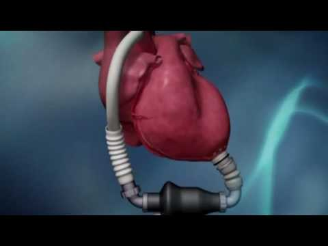 Ventricular Assist Device Supplies Ventricular Assist Devices