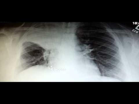 Pneumonia on Chest X-Ray: Most Important Things to Look For