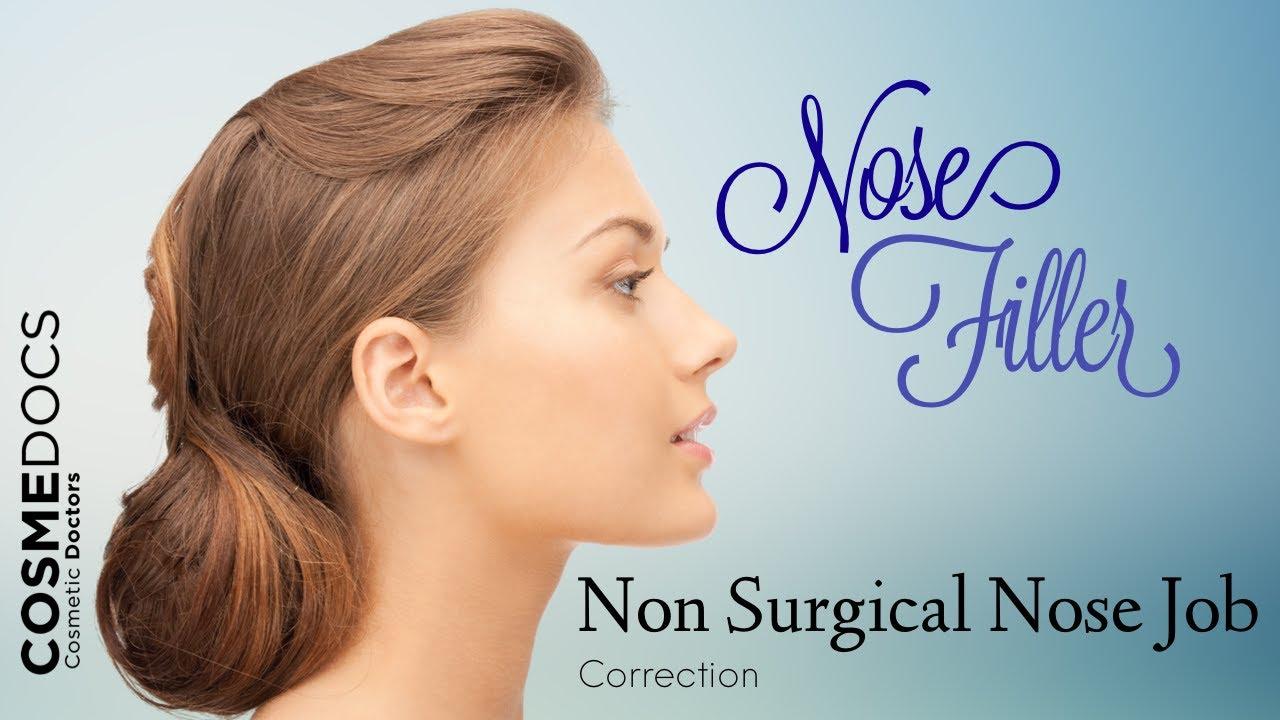 [Non Surgical Nose Job - Mini Rhinoplasty Using Dermal Filler...] Video