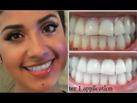 My Oral Hygiene + How I Keep a White Smile