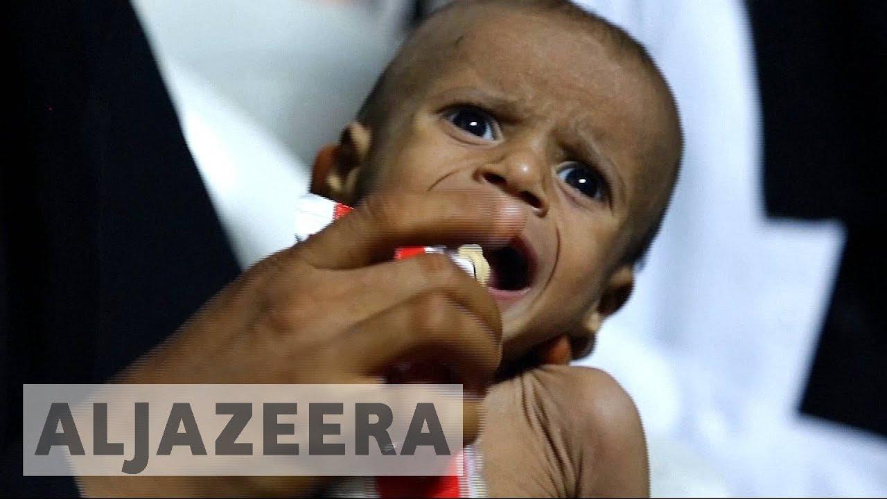 Yemen on the brink of famine amid cholera epidemic