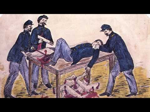 medical practices of the civil war Home uncategorizedshaping the medical practice through the civil war and shaping the medical practice through the civil medical practices improved.