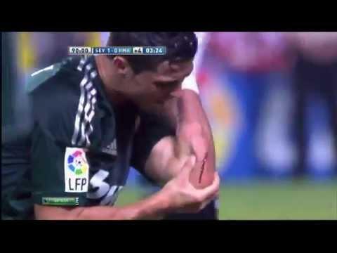 Cristiano Ronaldo injury blood - Sevilla vs Real Madrid 1-0 Liga BBVA 15/09/2012