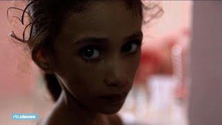 Anissa (8) weegt maar 10 kilo: hongersnood door oorlog in Jemen - RTL NIEUWS