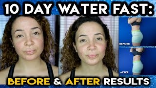 10 DAY WATER FAST | No Food For 10 Days