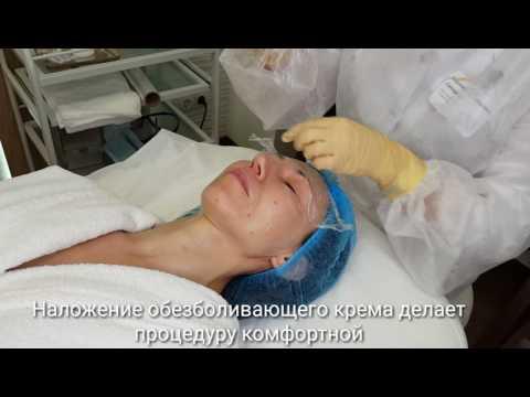 Инъекционная биоревитализации в Центре инновационной косметологии ALTEOS Beauty