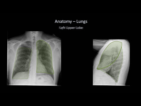 How to Interpret a Chest X-Ray (Lesson 2 - A Systematic Method and Anatomy)