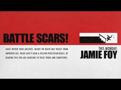 Jamie Foy's Battle Scars | This Monday...